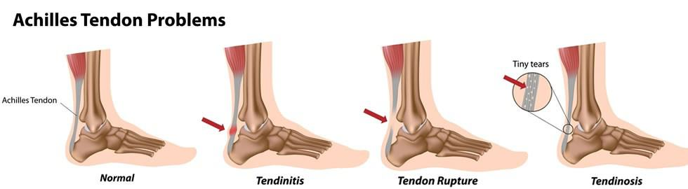 Achilles Tendon Problems Graphic