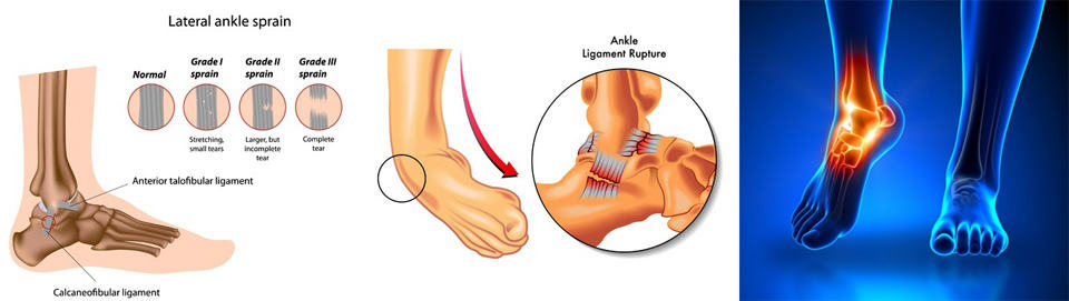 Weak Ankles - Albuquerque Local Elite Podiatrists