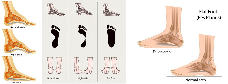 Acquired Flat Foot