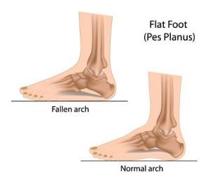 Flat Feet Treatment Phoenix AZ Foot Doctor Dr Jarman