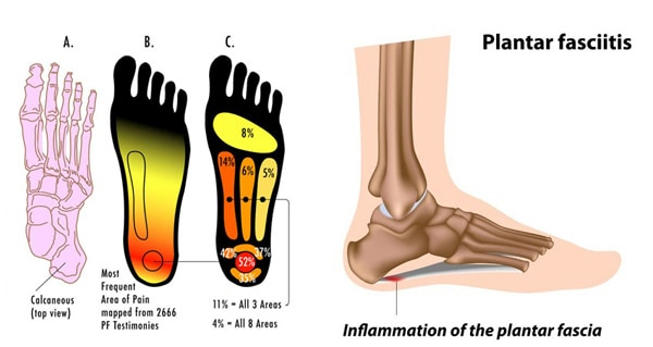 Plantar Fasciitis Remedies | Heel Pain Treatment Phoenix