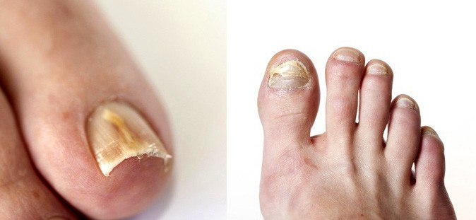Toenail Fungus Treatment Phoenix Podiatrist | Preferred Foot & Ankle