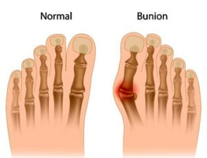 Bunions image - Bunion Surgery, Treatment and Removal