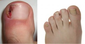 ingrown toenail treatment - Ingrown toenails- onychocryptosis