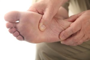 close up of the bottom of a man's foot for Plantar Fasciitis
