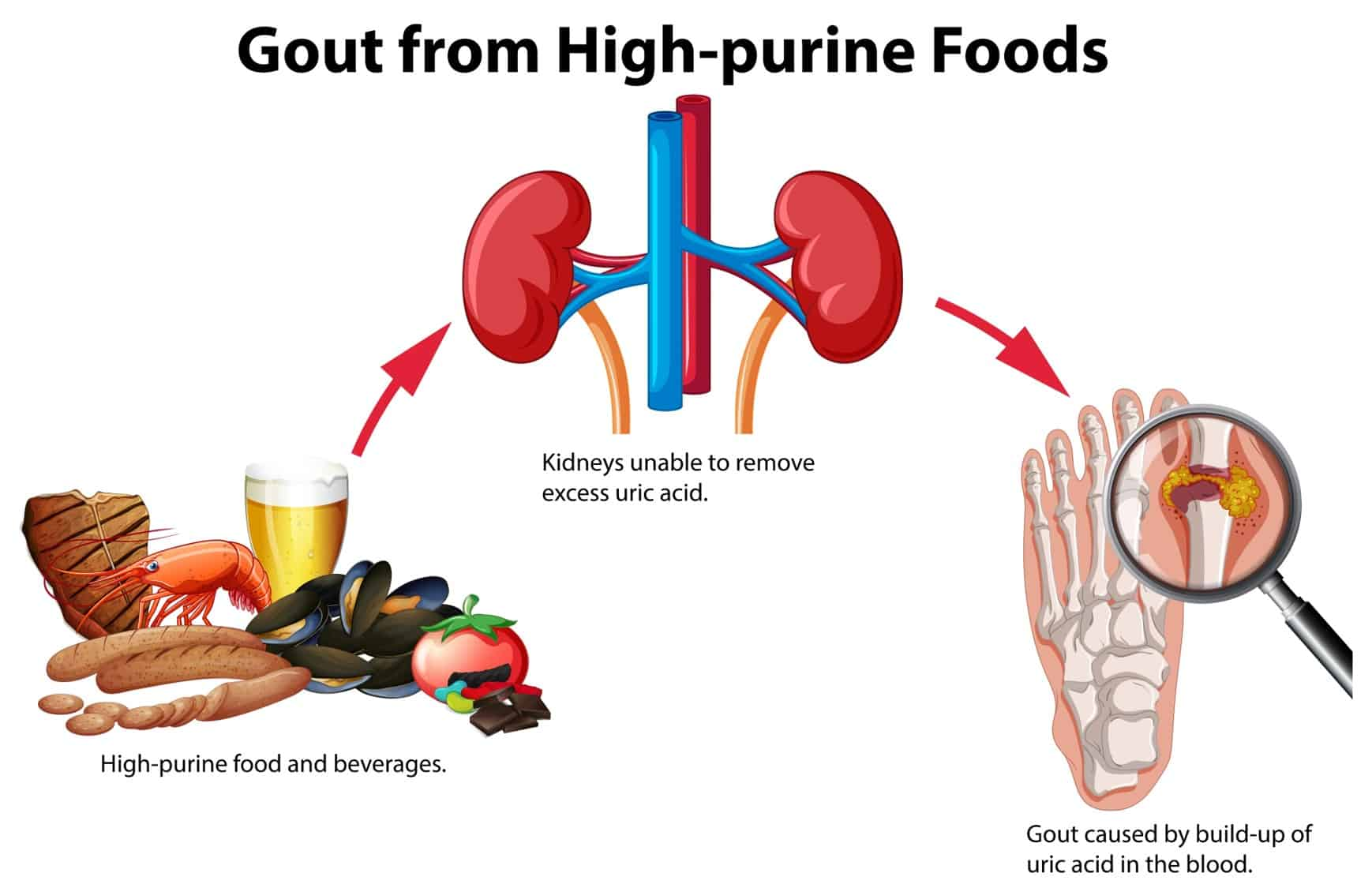 Foods that contribute to gout