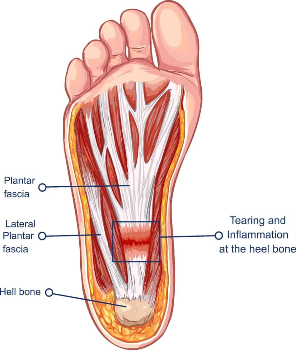 Illustration of planta fasciitis bottom of foot