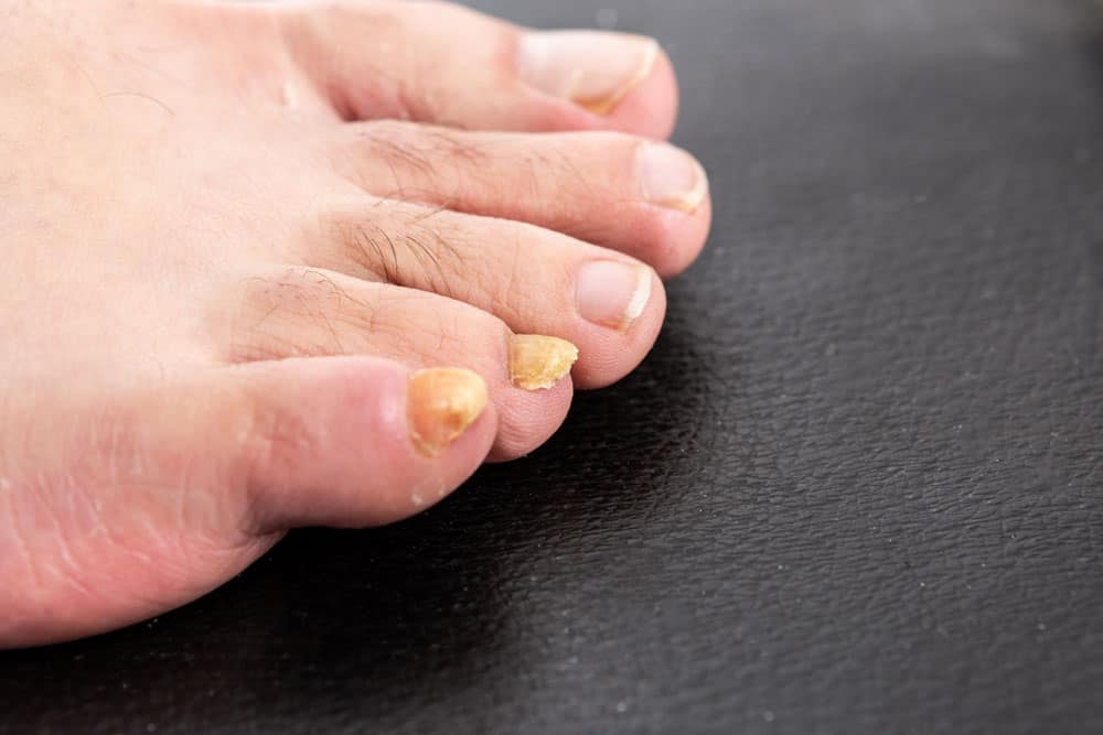 Yellow or discolored toenails