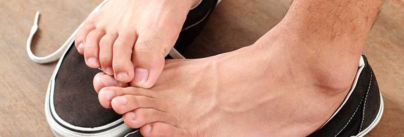 athletes foot causes and treatments